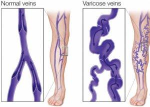 Varicose Veins Pain Relief